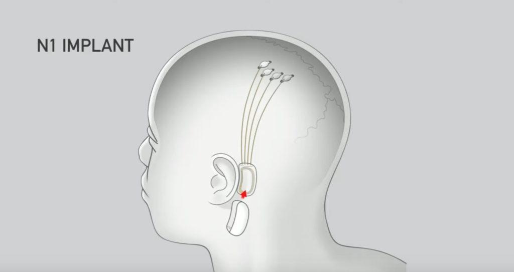 Импланты Neuralink для парализованных людей