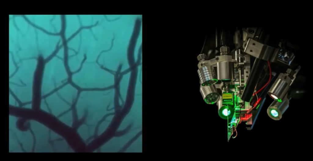 Робот, вживляющий импланты